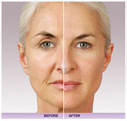 Juvederm Smiles by Design Chicago